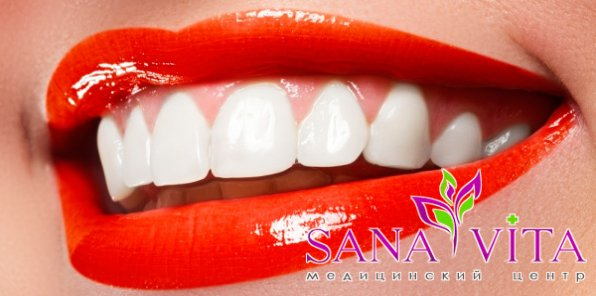 -85% на стоматологию в центре Sanavita