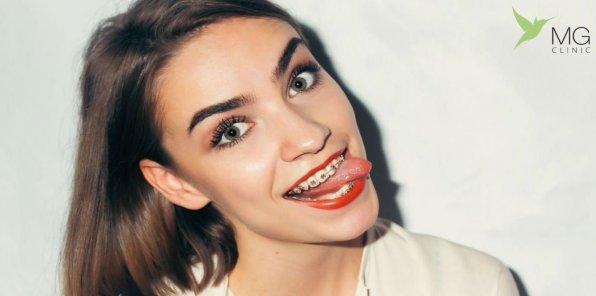 -85% на стоматологию в MG Clinic
