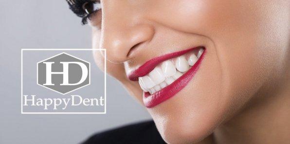 -90% от стоматологического центра «Хэппи Дент»